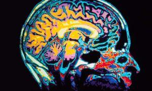 MRI-of-the-brain-006