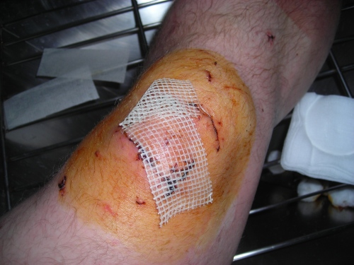Gauze_in_medical_useage_-_wound.jpg